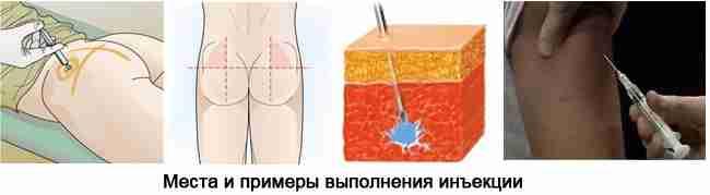 инъекции с содой методы