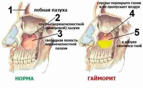 пазухи в норме и при гайморите
