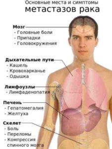 места метастазов при раке