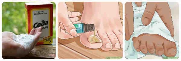 Сода от грибка ногтей на ногах: как лечить грибок ногтей на ногах пищевой содой?