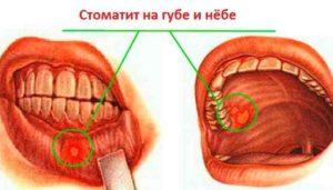 воспаление во рту