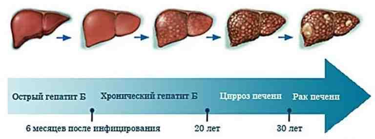 развитие печеночной болезни