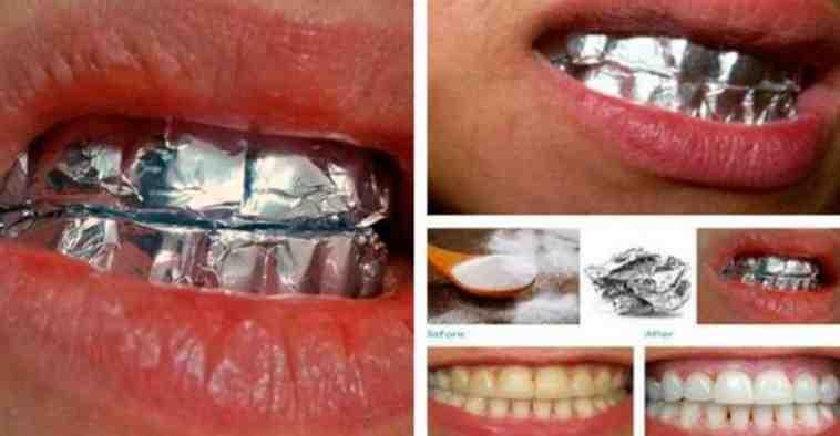 обернуть фольгой зубы