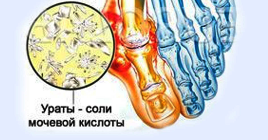 соли мочевой кислоты